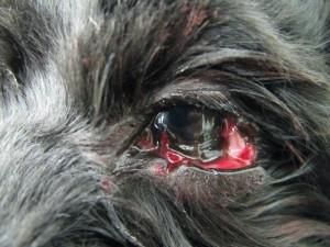 201306011_eye_surgery01